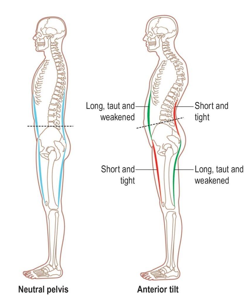 Massage_Posture